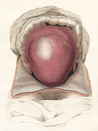Gravid uterus in situation. Anatomical Plates of the Human Body. John Lizars.