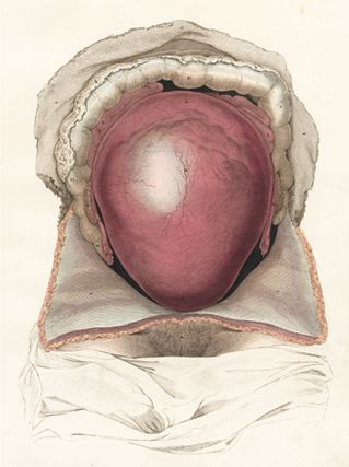 Gravid uterus in situation. Anatomical Plates of the Human Body. John Lizars